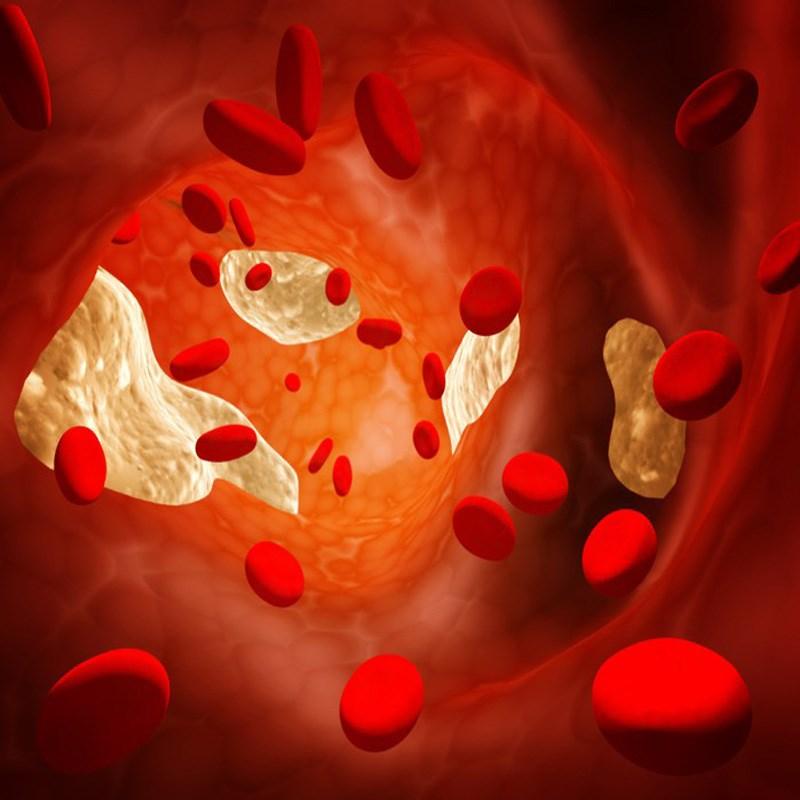 Vỏ chanh làm giảm nồng độ cholesterol