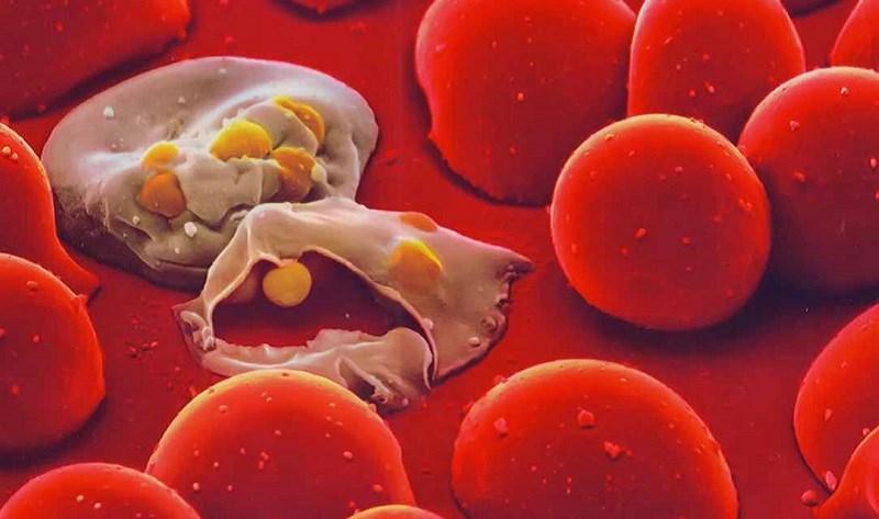 Trà hoa nhài tăng nguy cơ thiếu máu