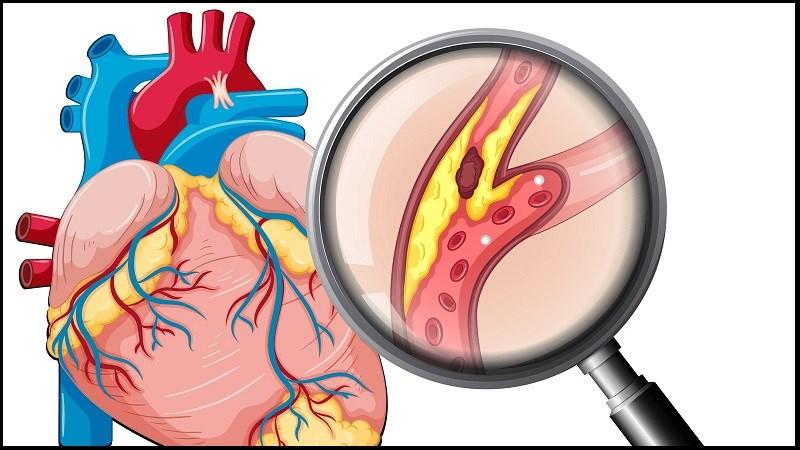 Vitamin C làm giảm nguy cơ mắc bệnh tim mạch
