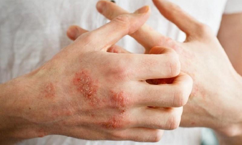 Tinh dầu oải hương làm dịu các vết chàm và da khô