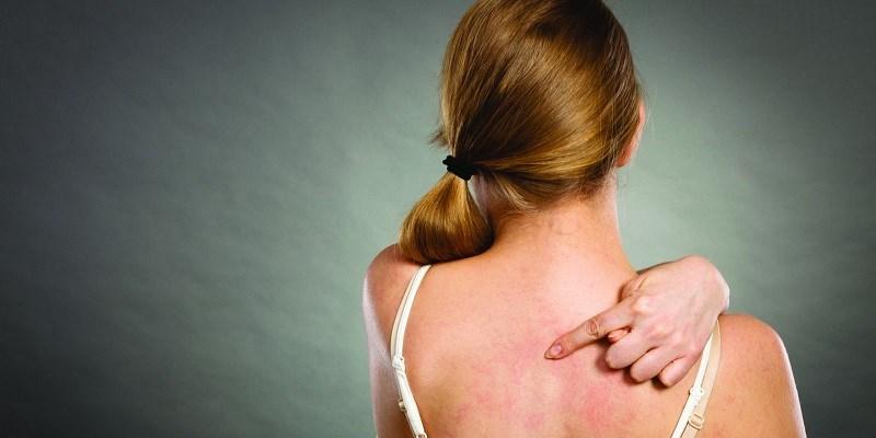 Tinh dầu oải hương có khả năng chống viêm
