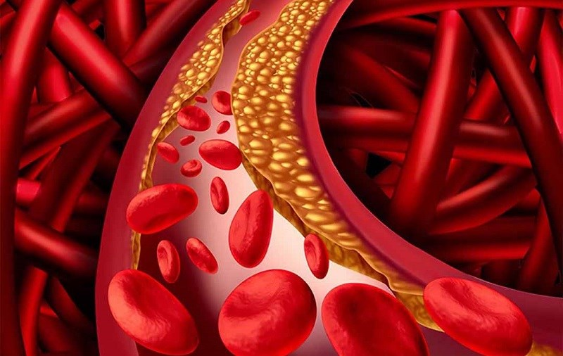 Trà hoa atiso đỏ giảm hàm lượng mỡ trong máu