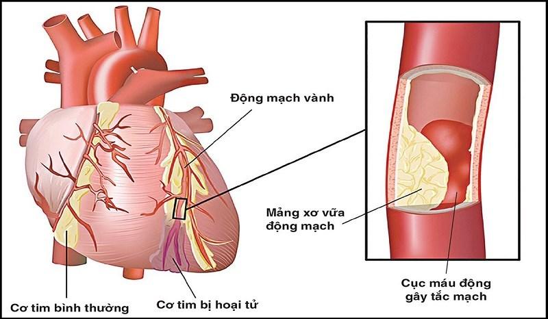 Hoa tam thất hỗ trợ cho người bị xơ vữa động mạch, huyết áp cao