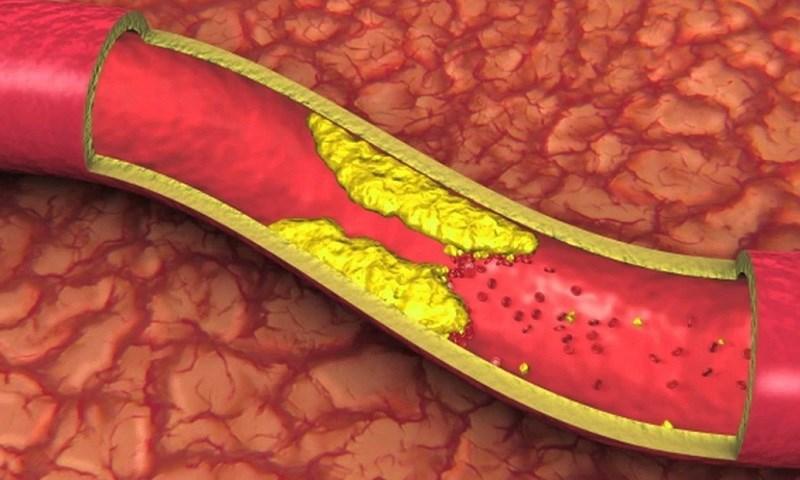 Hoa tam thất hỗ trợ cho người bị tiểu đường và mỡ trong máu