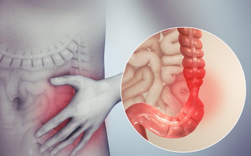 tinh dầu sả hỗ trợ sức khỏe đường ruột