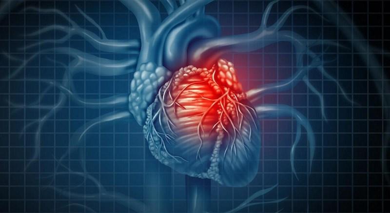 Nghệ giảm nguy cơ bệnh tim