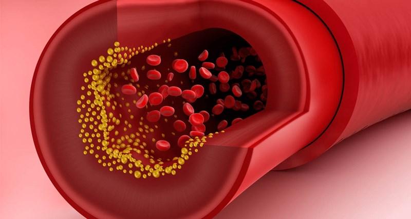 giấm táo Giảm lượng cholesterol trong máu