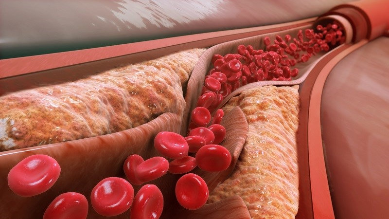 Dầu hướng dương làm giảm cholesterol xấu