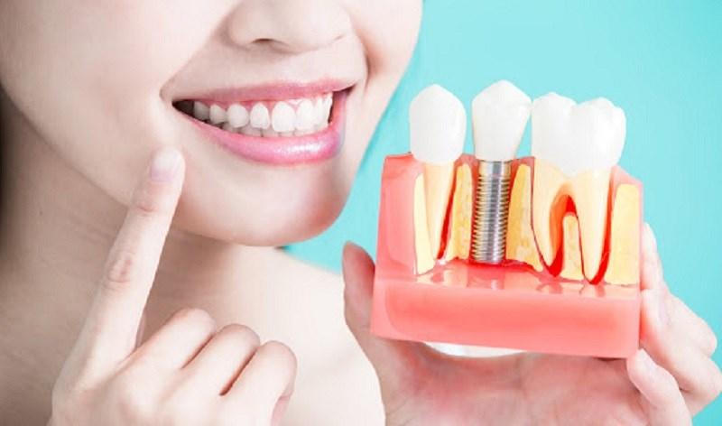 Hạnh nhân giúp răng xương chắc khỏe