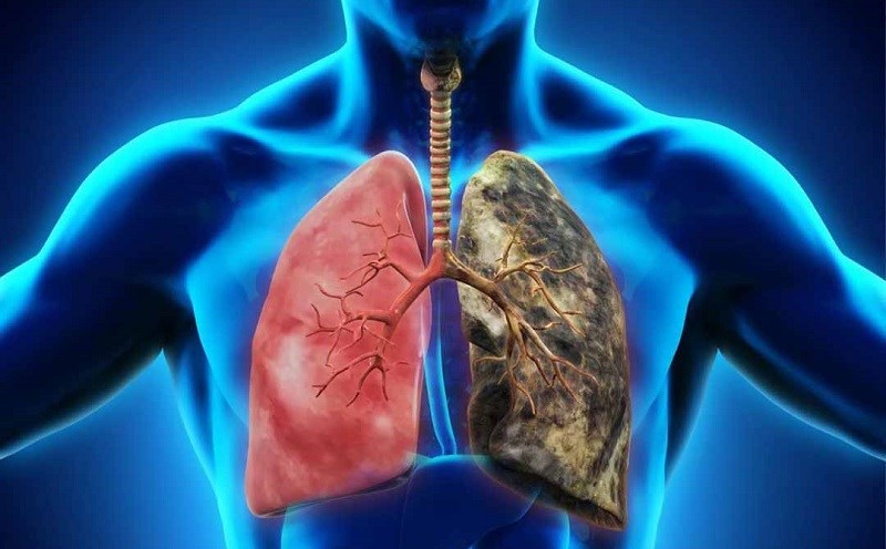 Kỷ tử cải thiện sức khỏe phổi