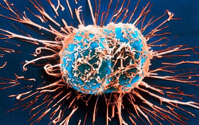 Trà xanh giảm nguy cơ mắc bệnh ung thư