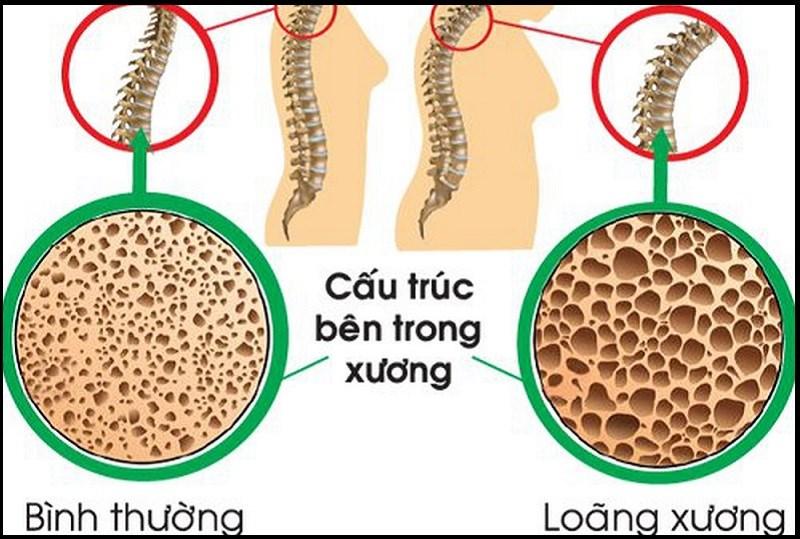 Chanh dây ngăn ngừa loãng xương