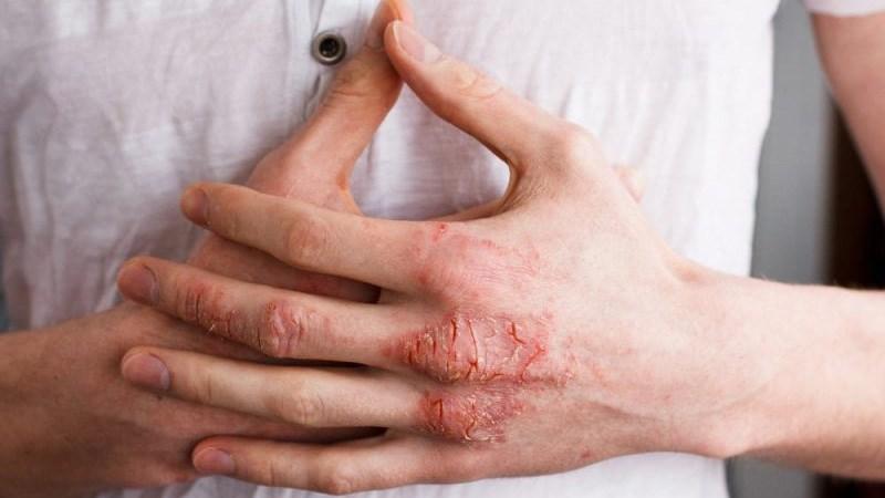 Làm bệnh ngoài da nặng hơn