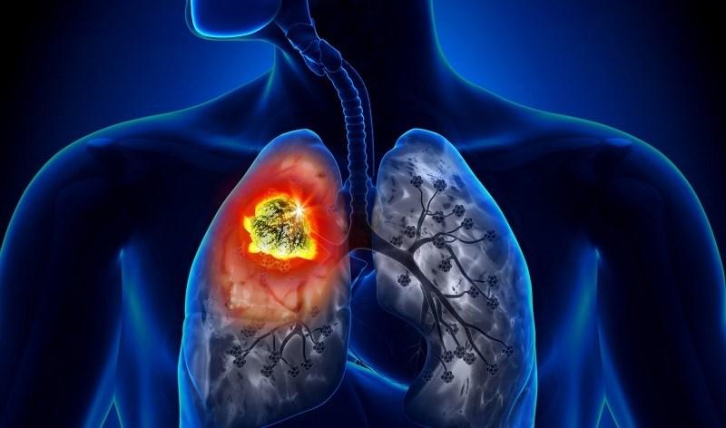 Vitamin A giảm nguy cơ mắc bệnh ung thư