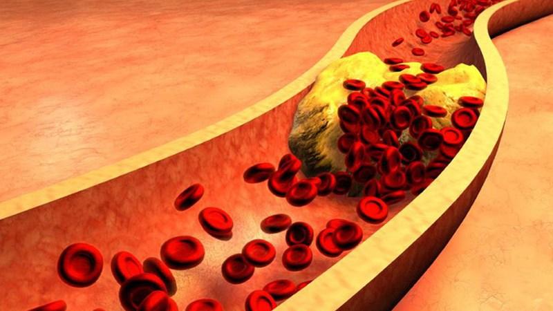 giúp giảm lượng cholesterol