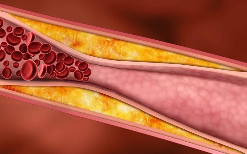 Cây xô thơm làm giảm cholesterol