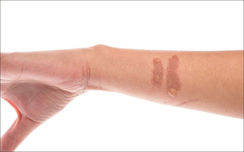 Mật ong có thể điều trị bỏng và vết thương