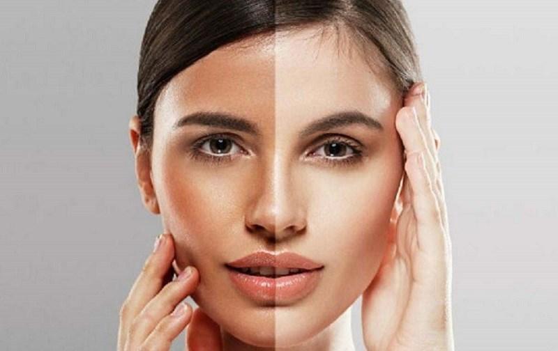 Nước chanh giúp cải thiện chất lượng làn da