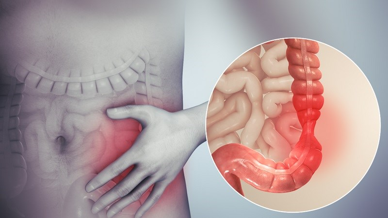 Bạc hà cải thiện hội chứng ruột kích thích