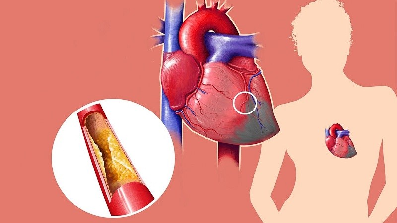 Buttermilk hỗ trợ làm giảm lượng cholesterol