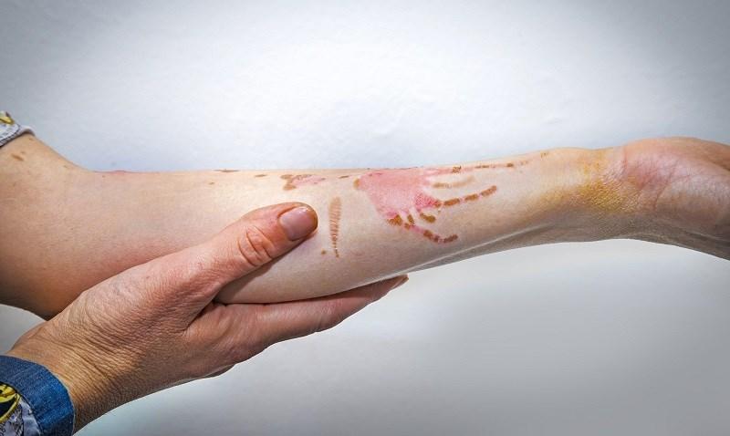 Dầu mè giúp điều trị vết thương và vết bỏng