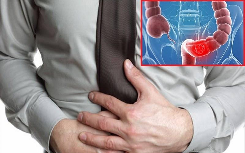 Nước vối giúp giảm triệu chứng viêm đại tràng