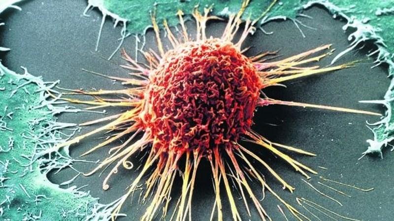 Nước ép cà chua ngăn ngừa ung thư