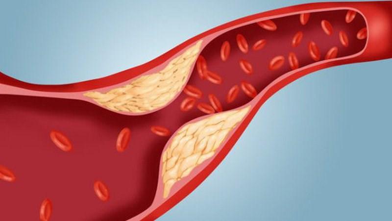 Giảm cholesterol