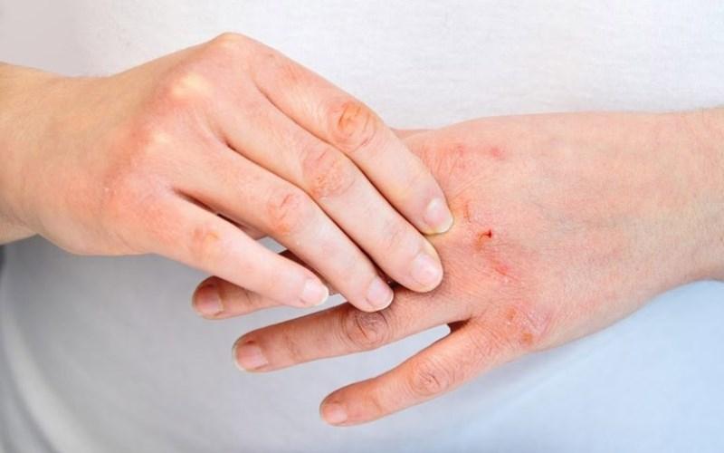 Người mắc bệnh ngoài da
