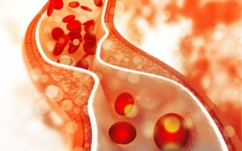 Lá sung giúp giảm cholesterol