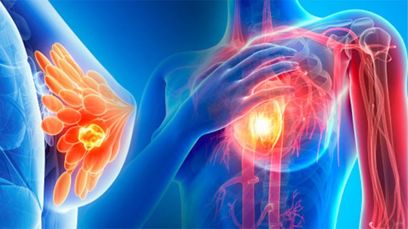 Sâm tố nữ có tác dụng chống ung thư