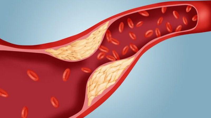 Lã mãng cầu xiêm giúp giảm cholesterol và đường máu
