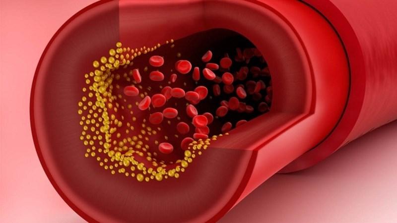 Giảm cholesterol xấu cho cơ thể