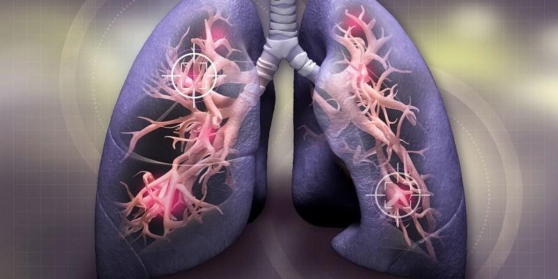 Chữa các bệnh về phổi