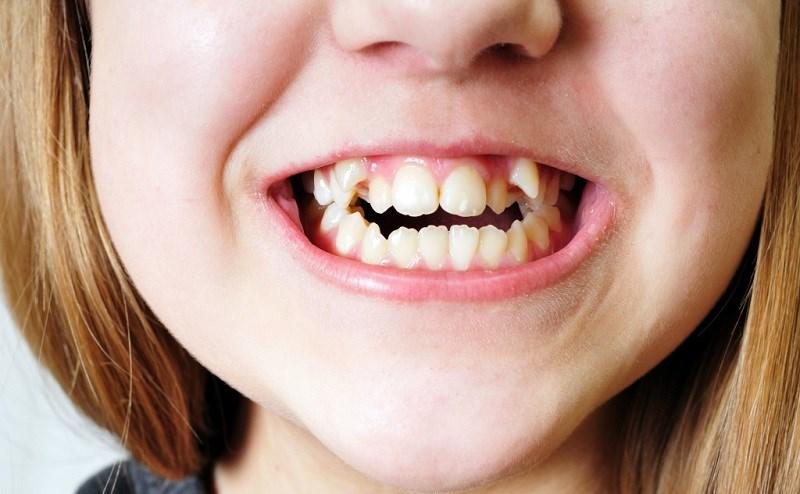 Có thể làm mòn răng