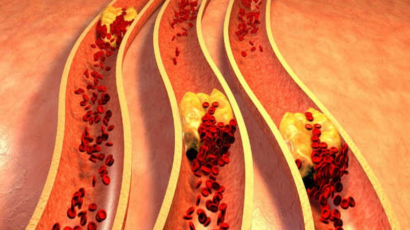 Cây chùm ngây làm giảm cholesterol
