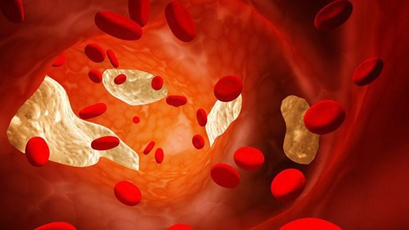 Hạt kê giúp giảm cholesterol
