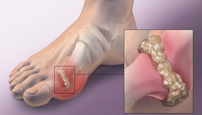 Giảm các cơn đau do bệnh gout gây ra
