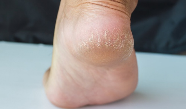 Nguyên nhân khiến bạn bị nứt gót chân