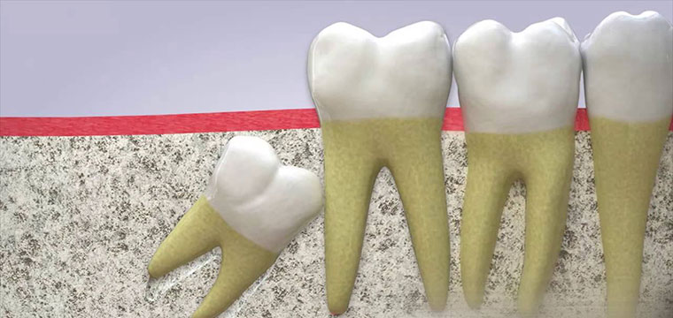 Cách dùng bàn chải đánh răng sau khi nhổ răng khôn