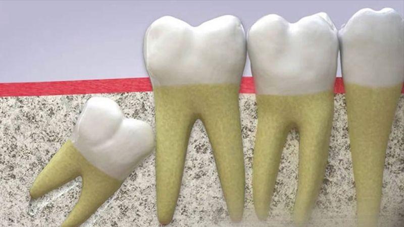 Răng khôn gây đau và khó chịu