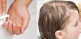 Cách chọn dầu gội trị gàu hiệu quả cho bé