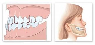 Cách chọn bàn chải đánh răng cho răng vẩu
