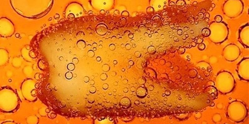 Đường và axit trong nước ngọt có gas là nhân tố gây tổn hại răng trẻ