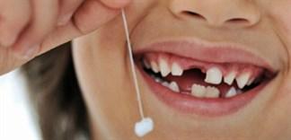 Cách chăm sóc răng trẻ sau khi nhổ răng sữa