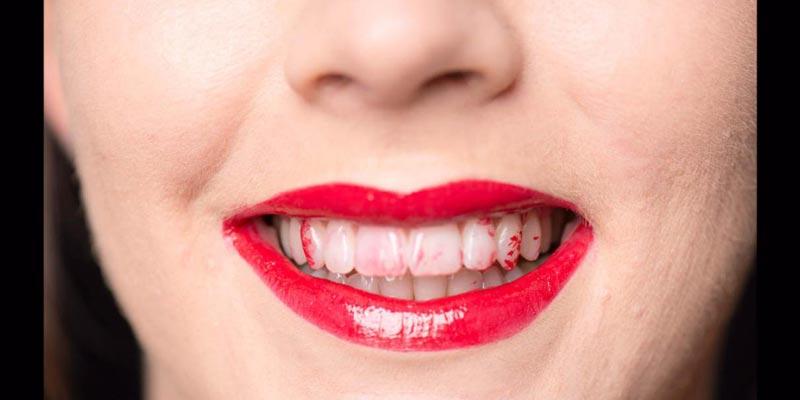 son dính răng