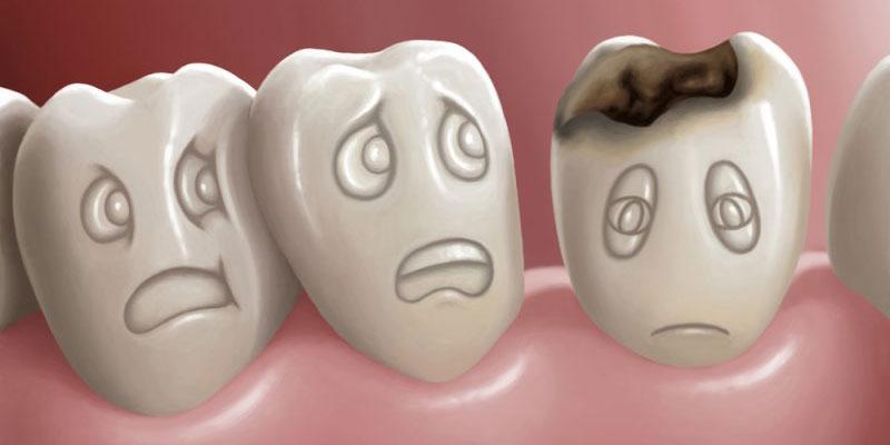 Ăn nhiều đồ ngọt bị sâu răng
