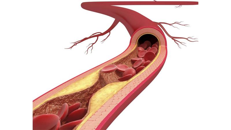 Cá ngừ giúp ngăn ngừa xơ vữa động mạch