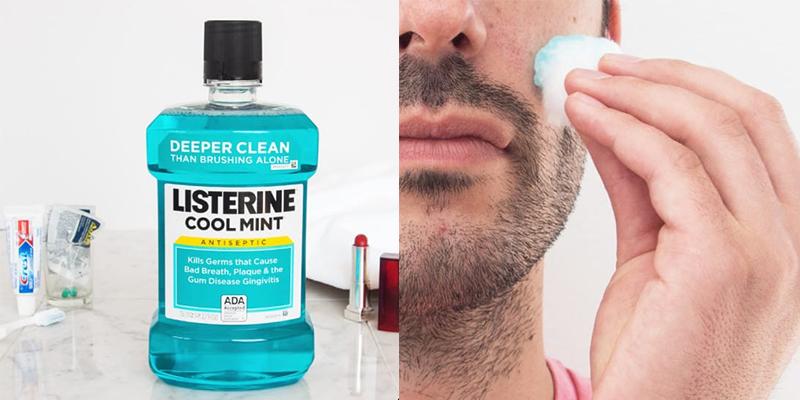 Dùng Listerine trị mụn cho mặt