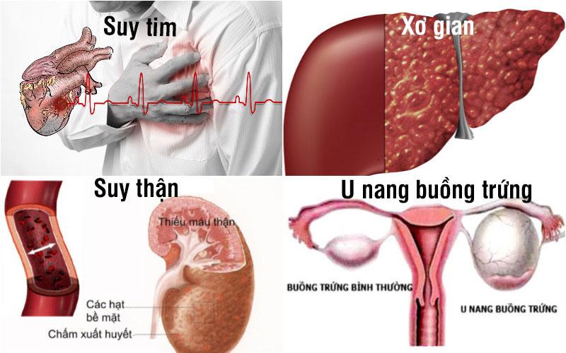Nguyên nhân ngoài phổi - màng phổi